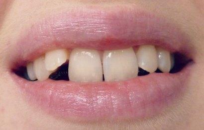 Adjusting To A Lingual Brace Inside I M Smiling