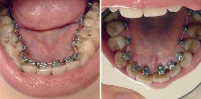 Inside I'm Smiling lingual braces blog